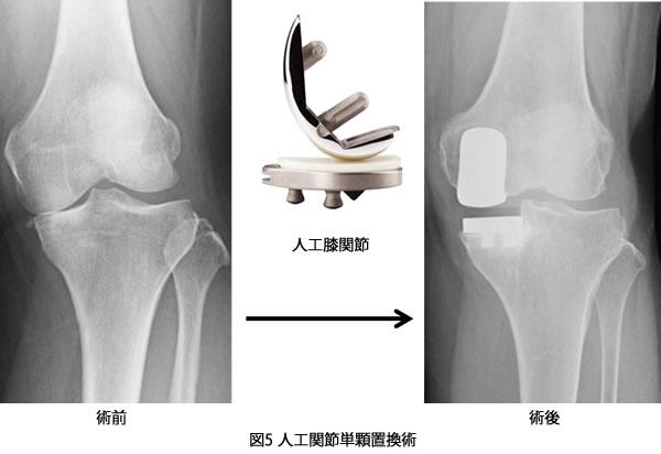 人工膝関節単顆(片側)置換術