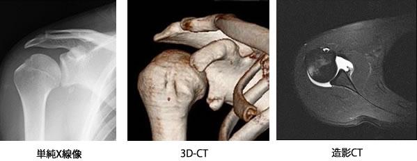 単純X線、3D-CT、造影CT