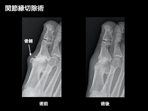 【画像】関節縁切除術