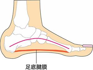 【画像】足底腱膜