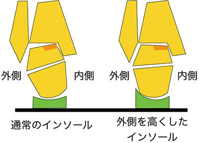 【画像】インソール