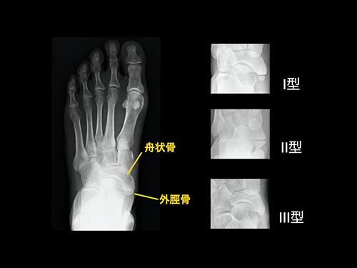 【画像】有痛性外脛骨