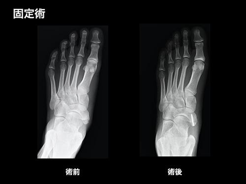 【画像】骨接合術
