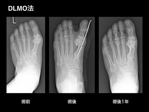 【画像】外反母趾の手術療法・DLMO法(デルモ法)