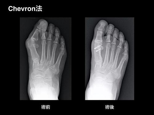 【画像】外反母趾の手術療法・中足骨遠位骨切り術(Chevron法 シェブロン法)