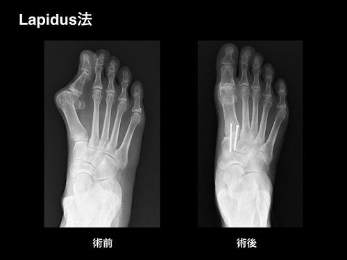 【画像】外反母趾の手術療法・関節固定術(Lapidus法 ラピダス法)
