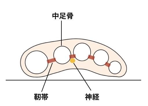 【画像】モートン神経種